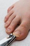 Uña del pie que corta 01 Foto de archivo libre de regalías