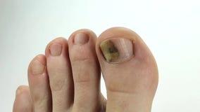 Uñas del pie con la infección por hongos Clavo enfermo Hongo del dedo gordo almacen de metraje de vídeo