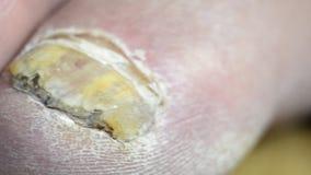 Uñas del pie con la infección por hongos común metrajes