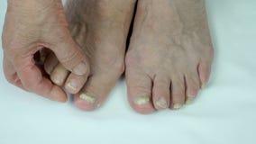 Uñas del pie de la mujer con la infección por hongos almacen de metraje de vídeo