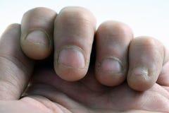 Żuć paznokcie Obrazy Royalty Free