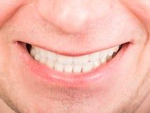 uśmiech toothy Zdjęcia Royalty Free