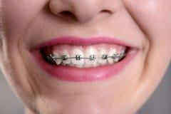 Uśmiechnięta dziewczyna pokazuje ona załatwiał brasy Fotografia Stock