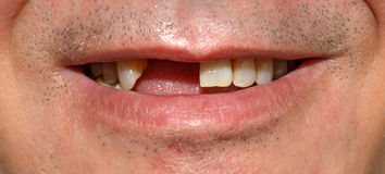 Uśmiech bez dwa frontowy Teet Zdjęcie Royalty Free