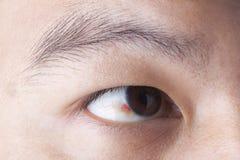 Ubconjunctival-Blutung im Auge lizenzfreie stockfotografie