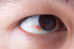 Ubconjunctival-Blutung im Auge stockfotografie