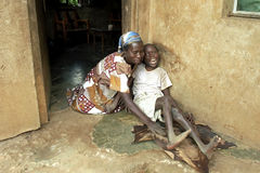 Ugandan mother takes care of son with disabilities. Uganda, Luweero district, village Kalasa: a woman takes loving care of her physically and mentally disabled Royalty Free Stock Image