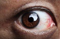 Ugly eye. Close up on human eye Royalty Free Stock Image