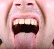 Ugly face of scary man Royalty Free Stock Photos