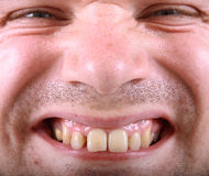 Ugly man Stock Images