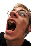 Ugly man with mouth open. And acne. Wearing glasses Royalty Free Stock Image