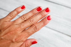 Ugly nails with bare manicure. The hand demanding manicure, nails with a bare varnish stock images