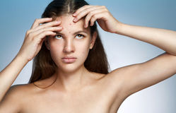 Ugly problem skin girl. Woman skin care concept Royalty Free Stock Photo