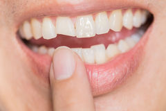 Ugly smile dental problem. Teeth Injuries or Teeth Breaking in Male. Trauma and Nerve Damage of injured tooth, Permanent Teeth Injury royalty free stock photos