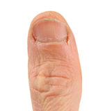 Ugly Thumb. Ugly white thumb on a white background.  In need of manicure Stock Photography