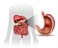 Ulcer. Stomach ulcer, interanal organs anatomy colorful drawing Stock Photos