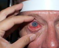 Ulcera corneale Fotografia Stock Libera da Diritti