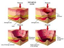 Ulcera Decubitus illustrazione vettoriale