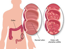 Ulcerative colitis. Medical illustration of the effects of the ulcerative colitis vector illustration