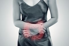 Free Ulcerative Colitis UC. Intestine Royalty Free Stock Images - 111550819