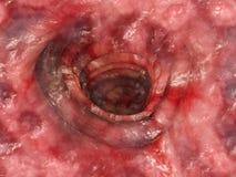 Ulcerosa κολίτιδων - στάδιο 4 - τρισδιάστατη απόδοση απεικόνιση αποθεμάτων