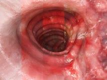 Ulcerosa da colite - toda a rendição das fases 3D ilustração royalty free