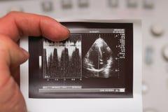 Ultradźwięk fotografia - serce, Doppler tryb Zdjęcia Royalty Free
