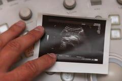 Ultradźwięk fotografia - trzustka nowotwór obrazy stock