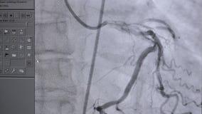 Ultradźwięk Istny bicie serca Ultrasonic egzamin na ekranie komputerowym zbiory wideo