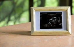Ultradźwięku obrazek dziecko w mommy brzuchu Zdjęcie Royalty Free