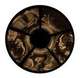 Ultraschall des Babys in der schwangeren Frau Stockbild