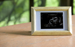 Ultraschallbild des Babys im Bauch der Mama Lizenzfreies Stockfoto
