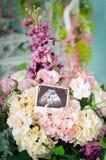 Ultraschallscan des Babys Lizenzfreies Stockbild