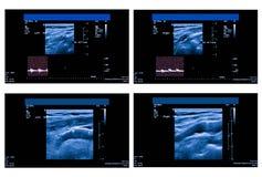 Ultrasone klankbeeld van de slagader van de halsslagader royalty-vrije stock fotografie