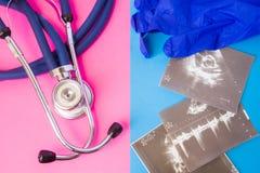 Ultrasone klankbeelden en medische stethoscoop op twee kleurenachtergrond: blauw en roze Concept voorbereiding of voltooiing van  royalty-vrije stock afbeeldingen