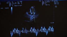 ultrasonido cardiología Cierre de la pantalla de monitor para arriba Examen del corazón con ultrasonido Repaso del cardiólogo del metrajes