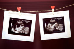 Ultrasound. Scan pictures of a baby in the belly of her mother royalty free stock image