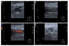 Ultrasound color doppler both leg. Ultrasound color doppler both leg:Hyperechoic thrombus with dilatation of veins, at Lt superficial femoral v. and popliteal v stock photos