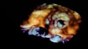 Ultrasound 3d cardiac examination stock video footage