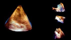 Ultrasound 3d cardiac examination stock footage