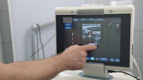 Ultrasound examination devices monitor close-up, color human organs. Medical tools in hospital or clinic.  stock footage
