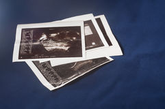 Ultrasound image print at blue cloth Stock Image