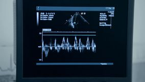 Ultrasound machine with monitor. Examination of the heart.  stock video footage