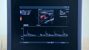 Ultrasound machine with monitor. Examination of the heart.  stock video