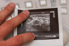 Ultrasound photo - Metastatic lymph node in breast cancer. Metastatic lymph node in breast cancer Stock Photo