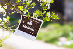 Ultrasound picture and parents Stock Photography
