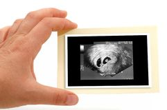 Ultrasound Scan for pregnancy Royalty Free Stock Photos