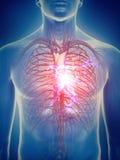 Um cardíaco de ataque ilustração royalty free