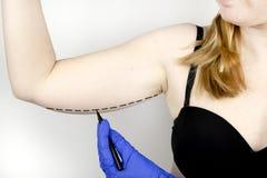 Um cirurgião plástico está preparando-se para apertar a pele das mãos Brachioplasty - braços plásticos, pele de suspensão que pen fotografia de stock