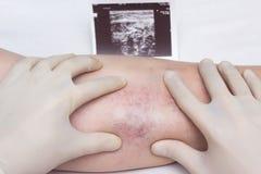 Um doutor nas luvas examina as veias e os pés do paciente para a presença de trombose e de veias varicosas das extremidades imagens de stock